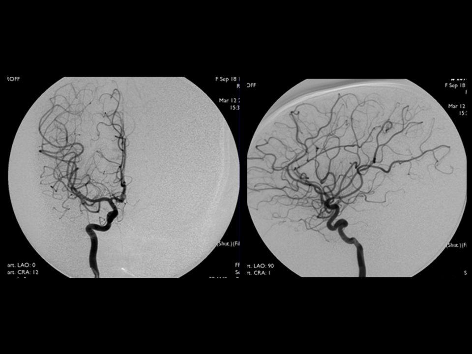 Angiografía Cerebral anterior, media