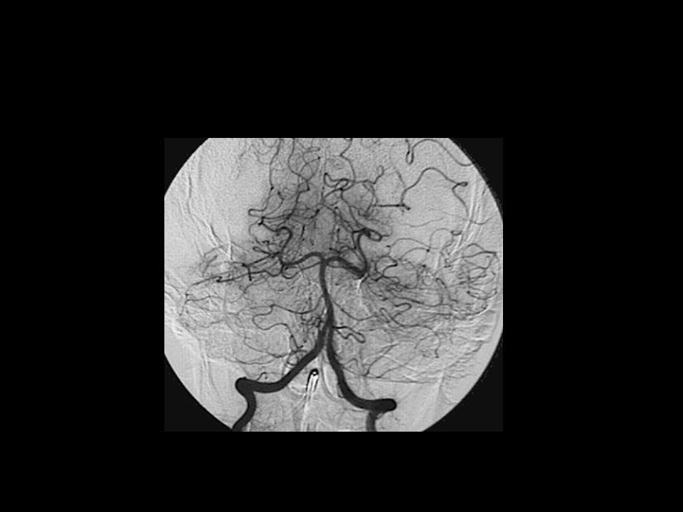 Vertebrales y basilar PICA AICA Cerebelosa superior