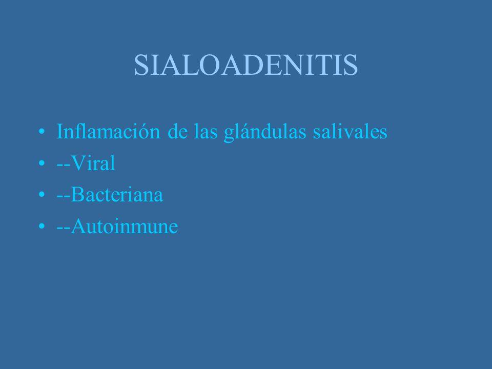 SIALOADENITIS Inflamación de las glándulas salivales --Viral