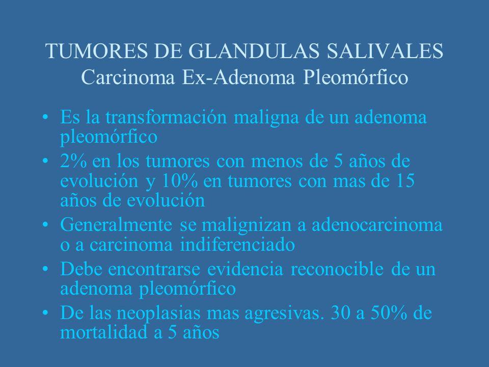 TUMORES DE GLANDULAS SALIVALES Carcinoma Ex-Adenoma Pleomórfico
