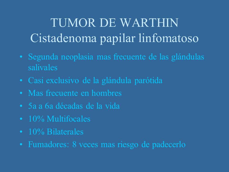 TUMOR DE WARTHIN Cistadenoma papilar linfomatoso