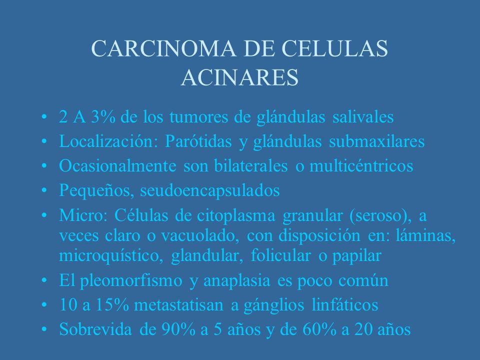 CARCINOMA DE CELULAS ACINARES