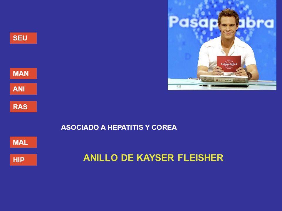 ANILLO DE KAYSER FLEISHER