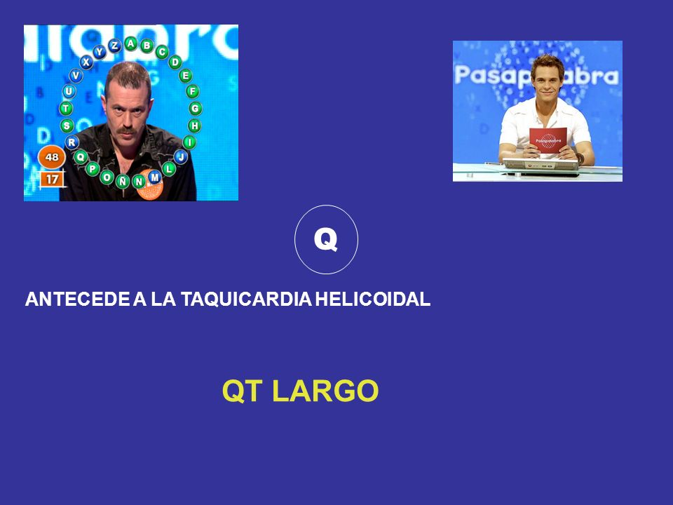 Q ANTECEDE A LA TAQUICARDIA HELICOIDAL QT LARGO