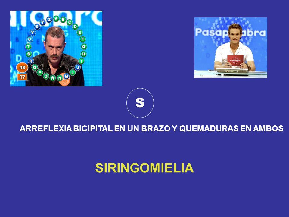 S ARREFLEXIA BICIPITAL EN UN BRAZO Y QUEMADURAS EN AMBOS SIRINGOMIELIA