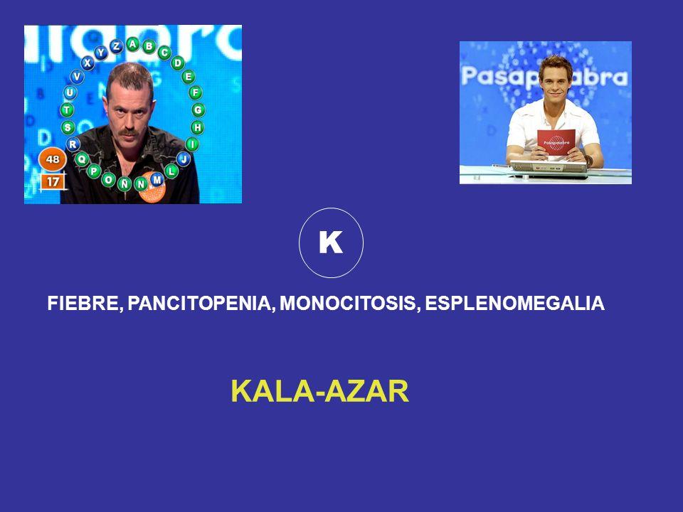 K FIEBRE, PANCITOPENIA, MONOCITOSIS, ESPLENOMEGALIA KALA-AZAR