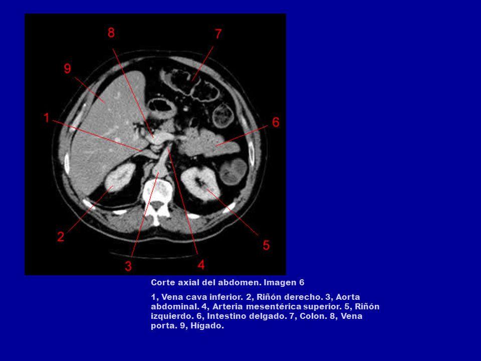 Corte axial del abdomen. Imagen 6