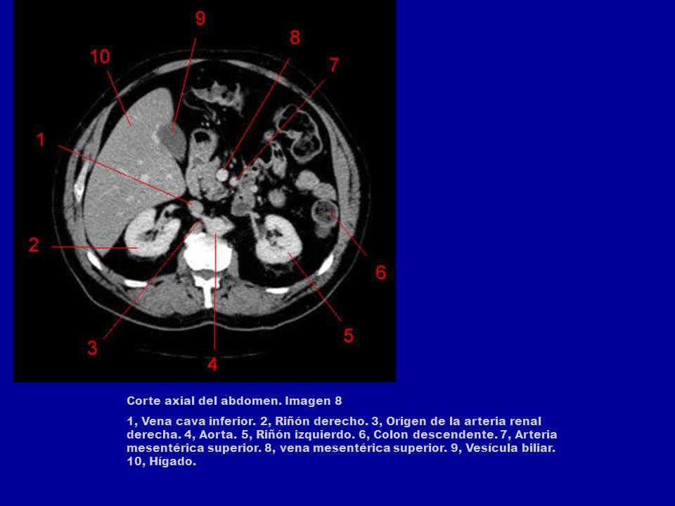 Corte axial del abdomen. Imagen 8