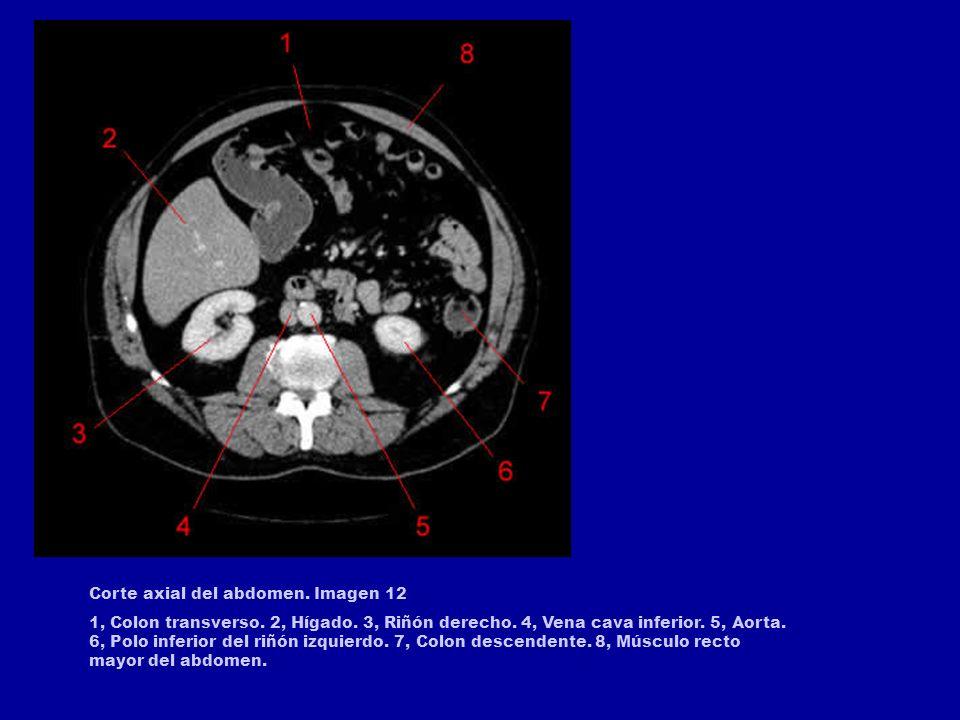 Corte axial del abdomen. Imagen 12