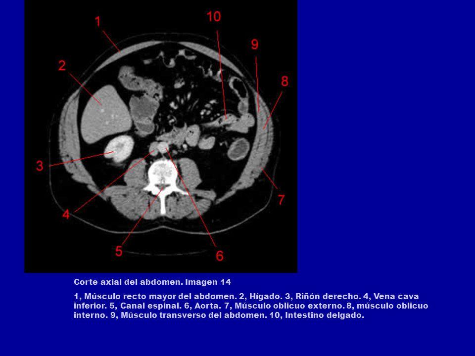 Corte axial del abdomen. Imagen 14