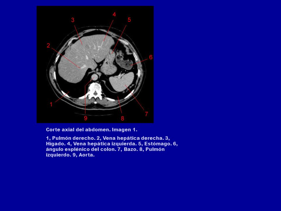 Corte axial del abdomen. Imagen 1.