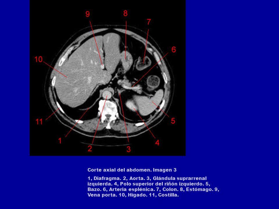 Corte axial del abdomen. Imagen 3