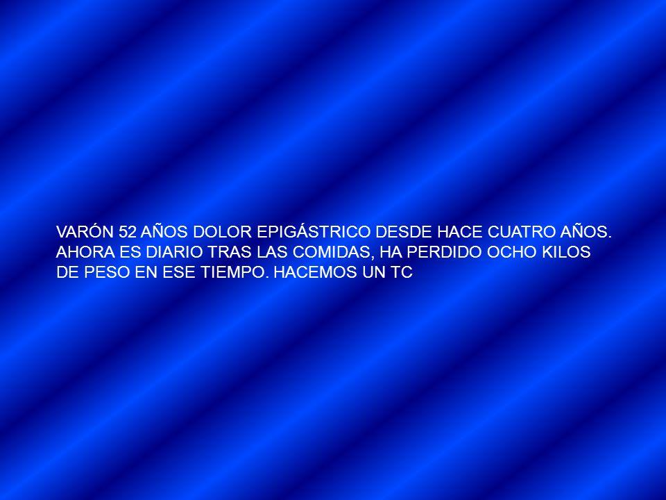 VARÓN 52 AÑOS DOLOR EPIGÁSTRICO DESDE HACE CUATRO AÑOS.