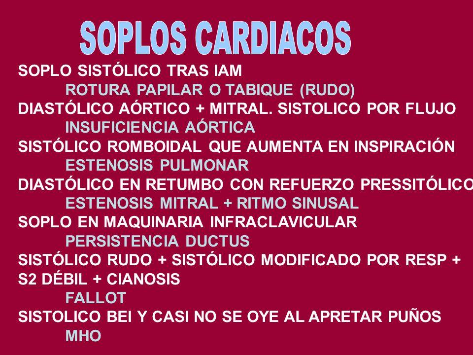 SOPLOS CARDIACOS SOPLO SISTÓLICO TRAS IAM