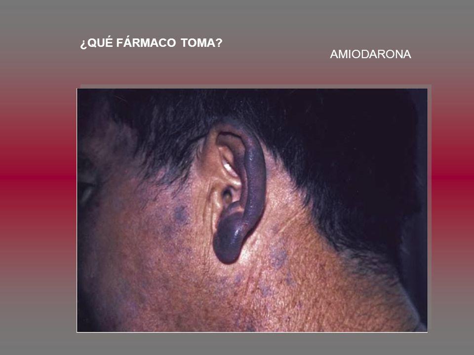 ¿QUÉ FÁRMACO TOMA AMIODARONA