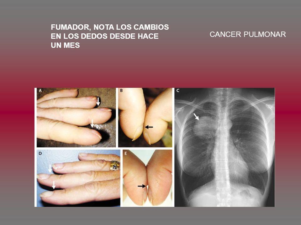 FUMADOR, NOTA LOS CAMBIOS