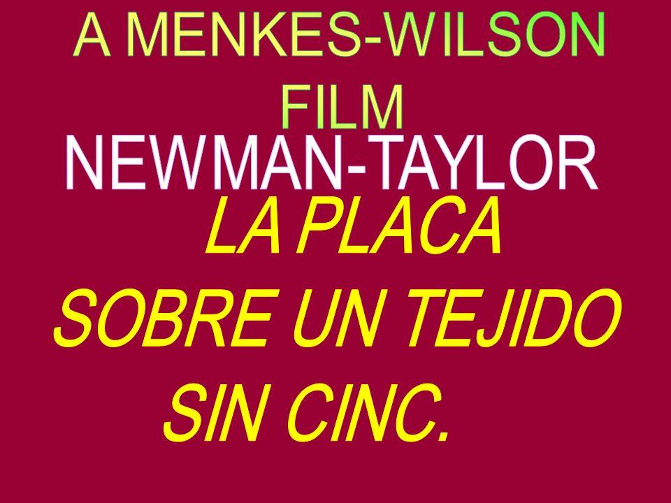 A MENKES-WILSON FILM NEWMAN-TAYLOR LA PLACA SOBRE UN TEJIDO SIN CINC.