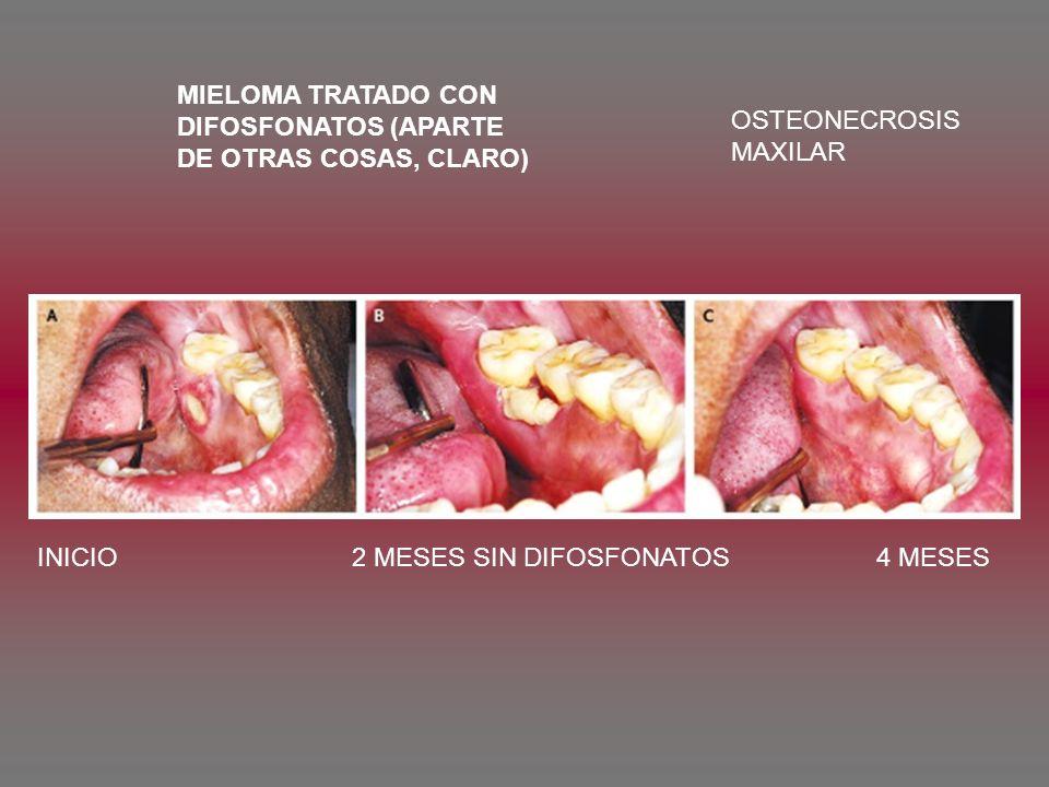MIELOMA TRATADO CON DIFOSFONATOS (APARTE. DE OTRAS COSAS, CLARO) OSTEONECROSIS.