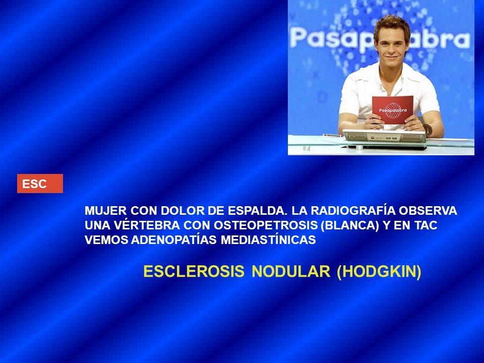 ESCLEROSIS NODULAR (HODGKIN)
