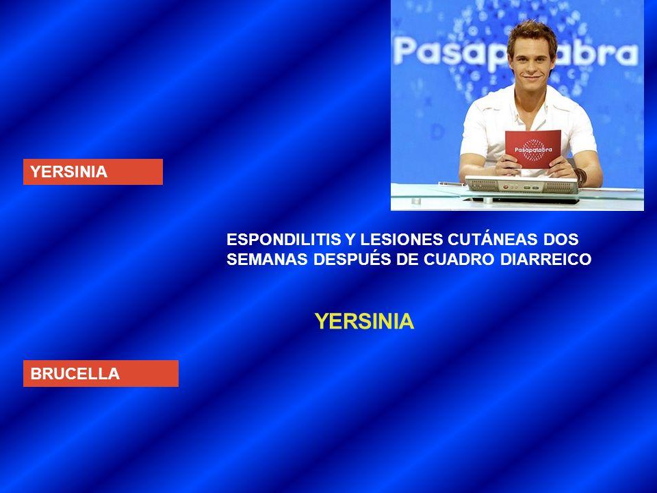 YERSINIA YERSINIA ESPONDILITIS Y LESIONES CUTÁNEAS DOS
