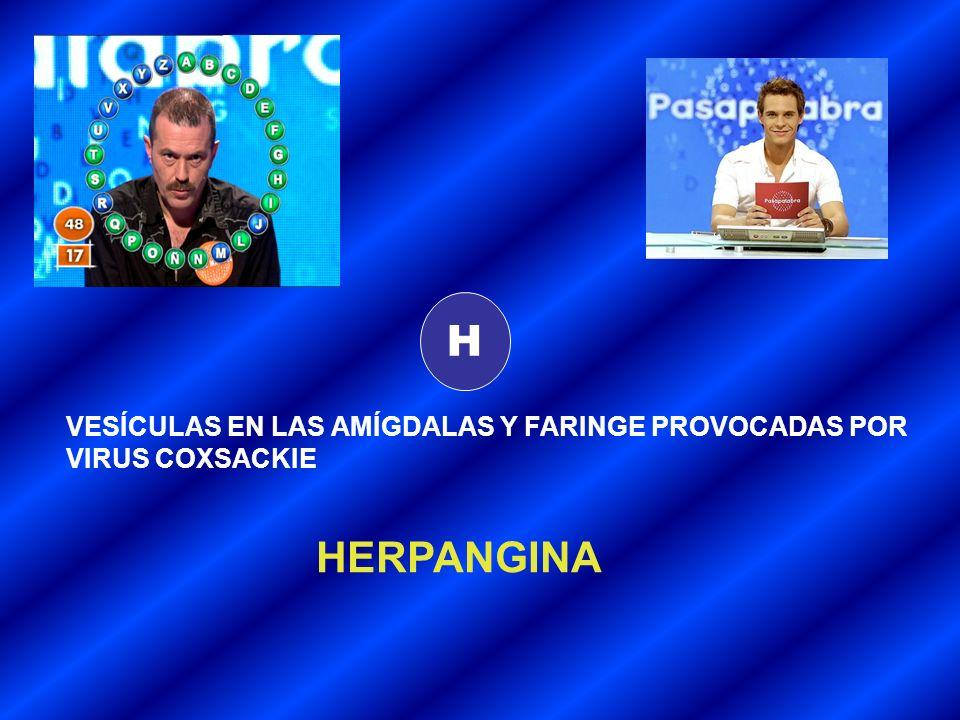 H HERPANGINA VESÍCULAS EN LAS AMÍGDALAS Y FARINGE PROVOCADAS POR