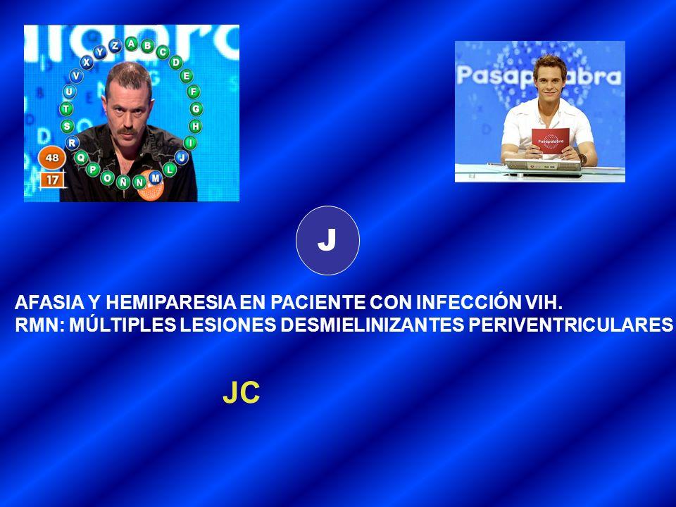 J JC AFASIA Y HEMIPARESIA EN PACIENTE CON INFECCIÓN VIH.