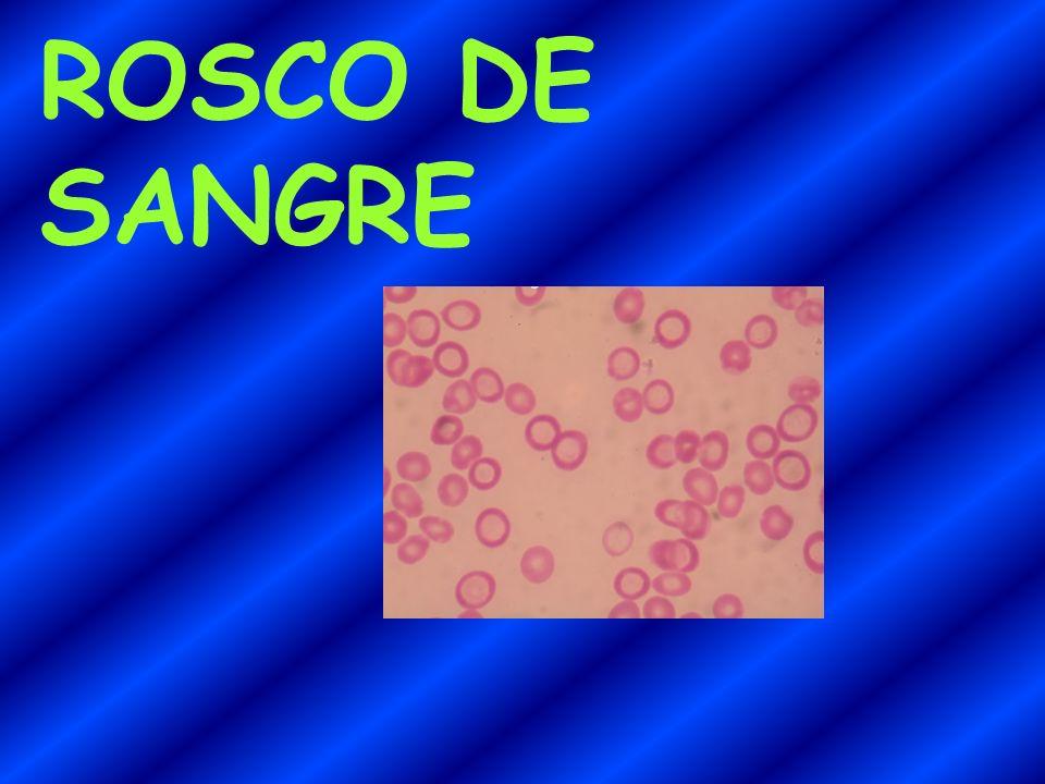 ROSCO DE SANGRE
