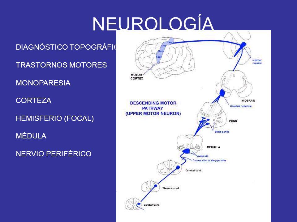 NEUROLOGÍA DIAGNÓSTICO TOPOGRÁFICO TRASTORNOS MOTORES MONOPARESIA