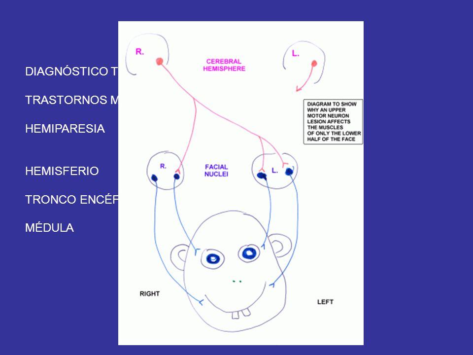 NEUROLOGÍA DIAGNÓSTICO TOPOGRÁFICO TRASTORNOS MOTORES HEMIPARESIA