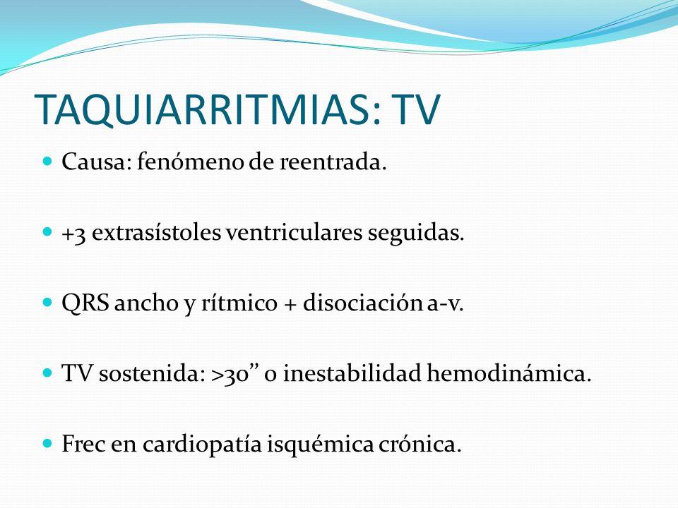 TAQUIARRITMIAS: TV Causa: fenómeno de reentrada.