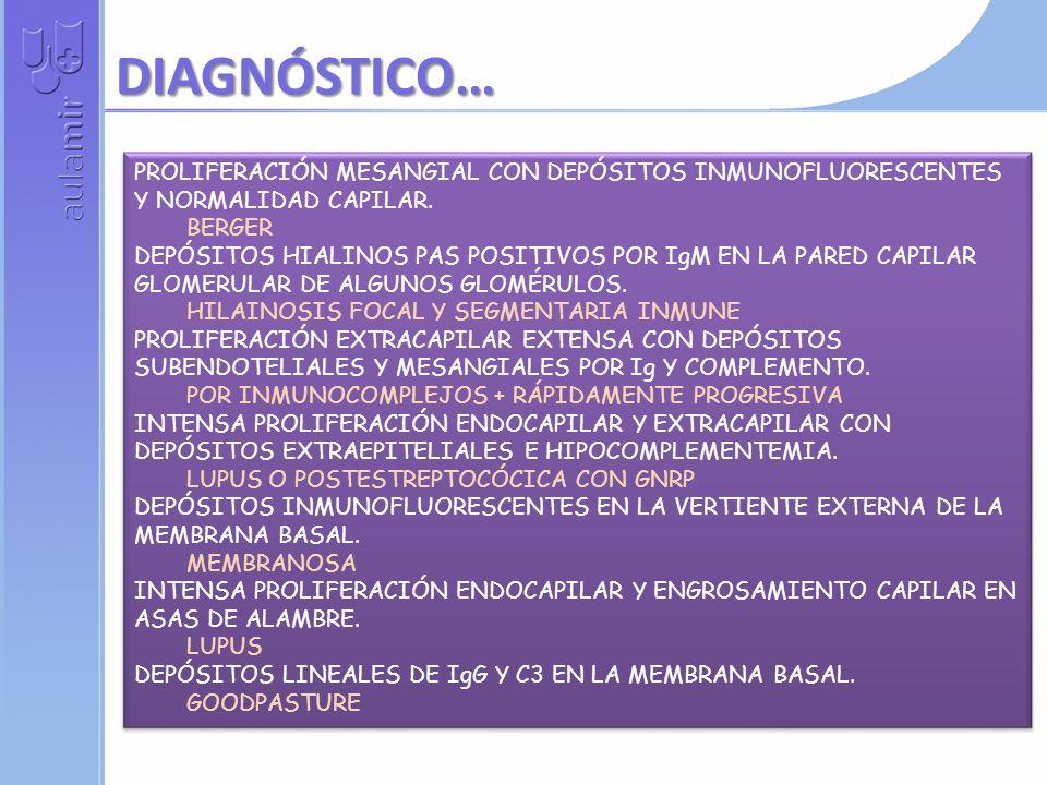 DIAGNÓSTICO… PROLIFERACIÓN MESANGIAL CON DEPÓSITOS INMUNOFLUORESCENTES Y NORMALIDAD CAPILAR. BERGER.