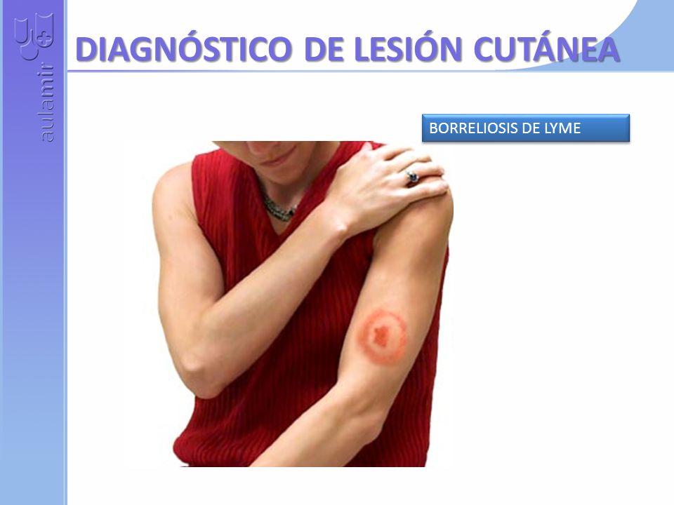DIAGNÓSTICO DE LESIÓN CUTÁNEA