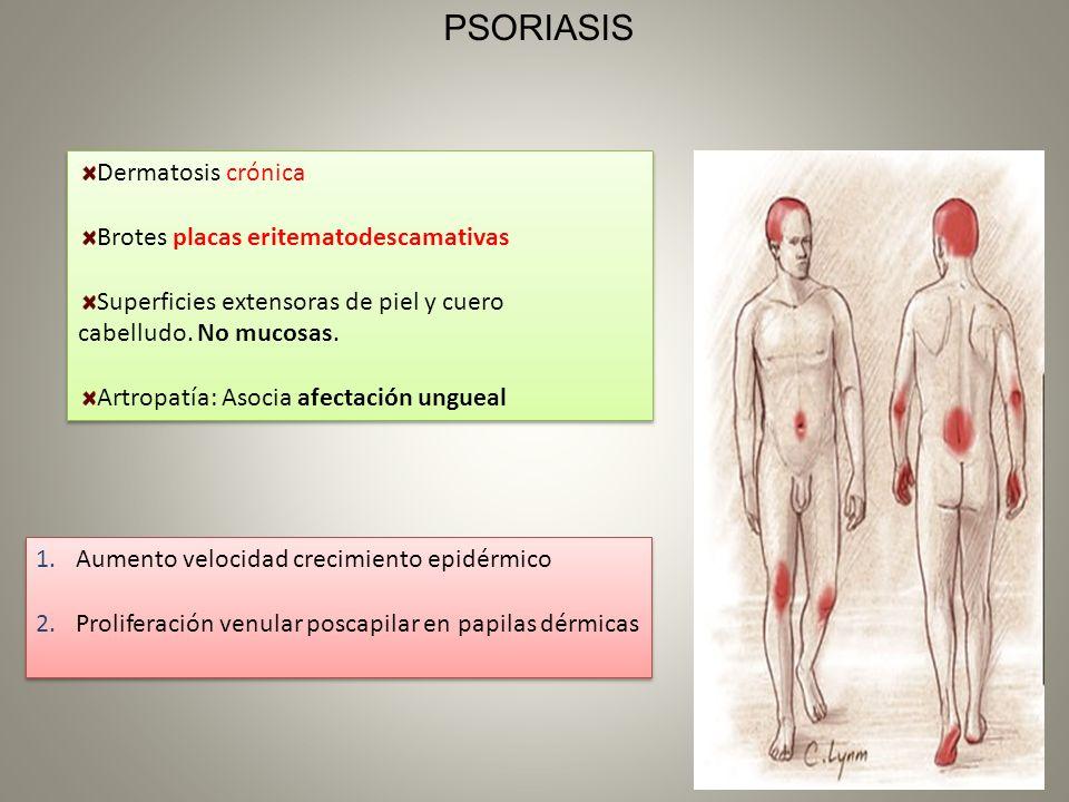 PSORIASIS Dermatosis crónica Brotes placas eritematodescamativas