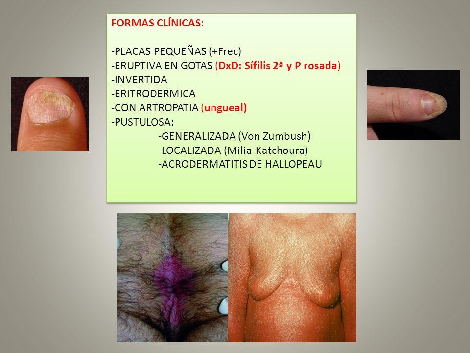 FORMAS CLÍNICAS: -PLACAS PEQUEÑAS (+Frec) -ERUPTIVA EN GOTAS (DxD: Sífilis 2ª y P rosada) -INVERTIDA.