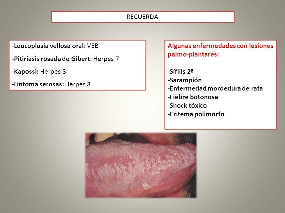 RECUERDA -Leucoplasia vellosa oral: VEB. -Pitiriasis rosada de Gibert: Herpes 7. -Kapossi: Herpes 8.