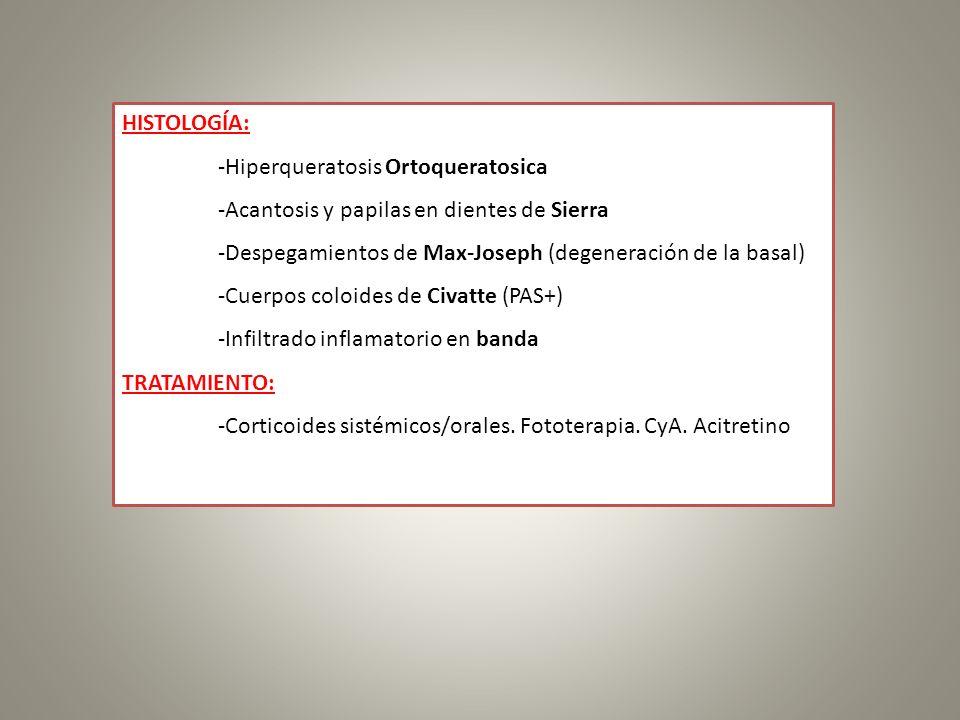 HISTOLOGÍA: -Hiperqueratosis Ortoqueratosica. -Acantosis y papilas en dientes de Sierra. -Despegamientos de Max-Joseph (degeneración de la basal)
