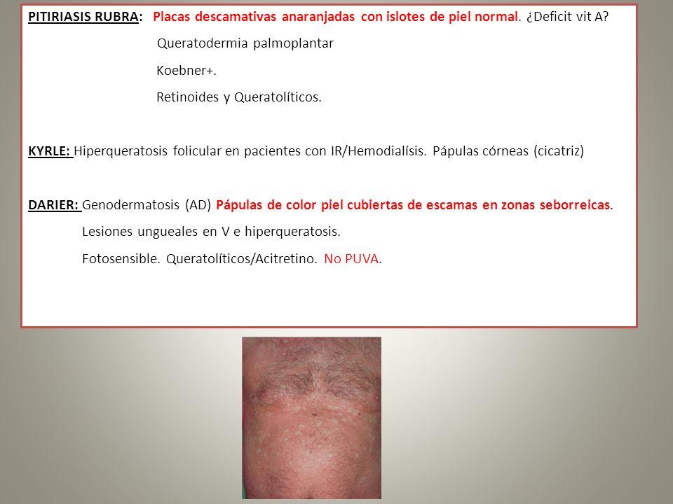 PITIRIASIS RUBRA: Placas descamativas anaranjadas con islotes de piel normal. ¿Deficit vit A