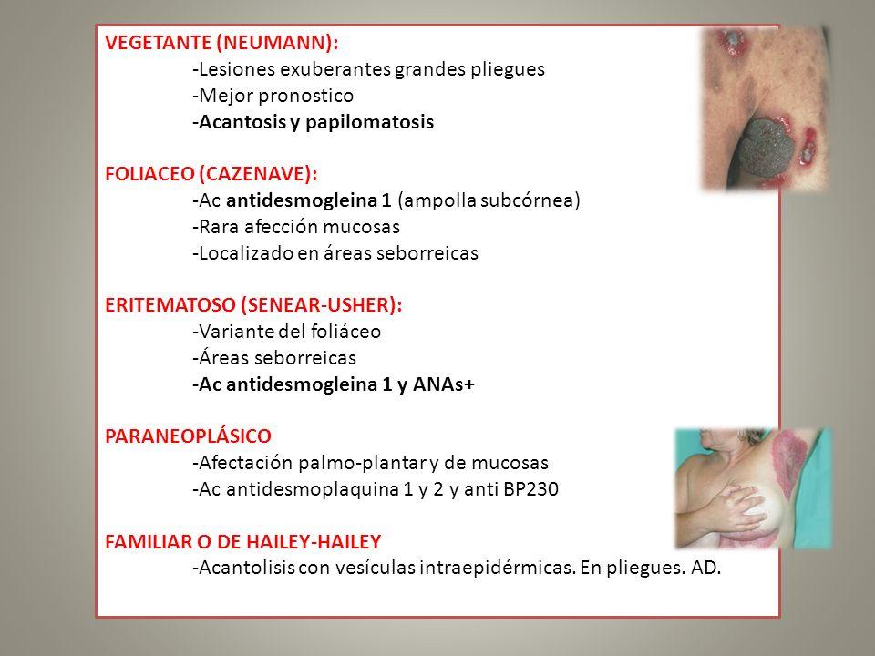VEGETANTE (NEUMANN): -Lesiones exuberantes grandes pliegues. -Mejor pronostico. -Acantosis y papilomatosis.