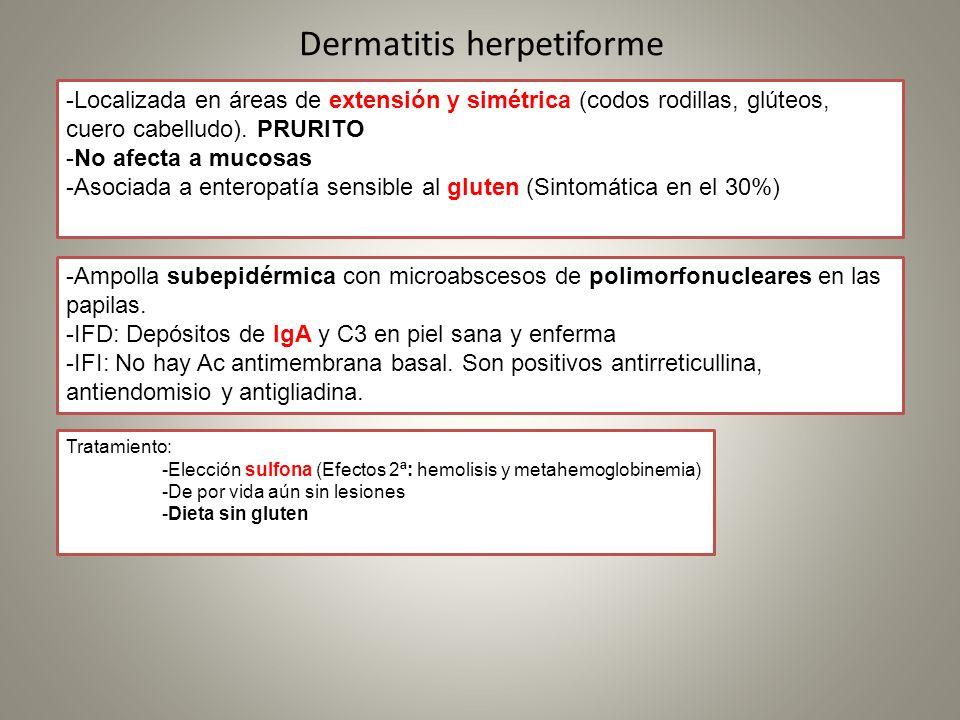 Dermatitis herpetiforme