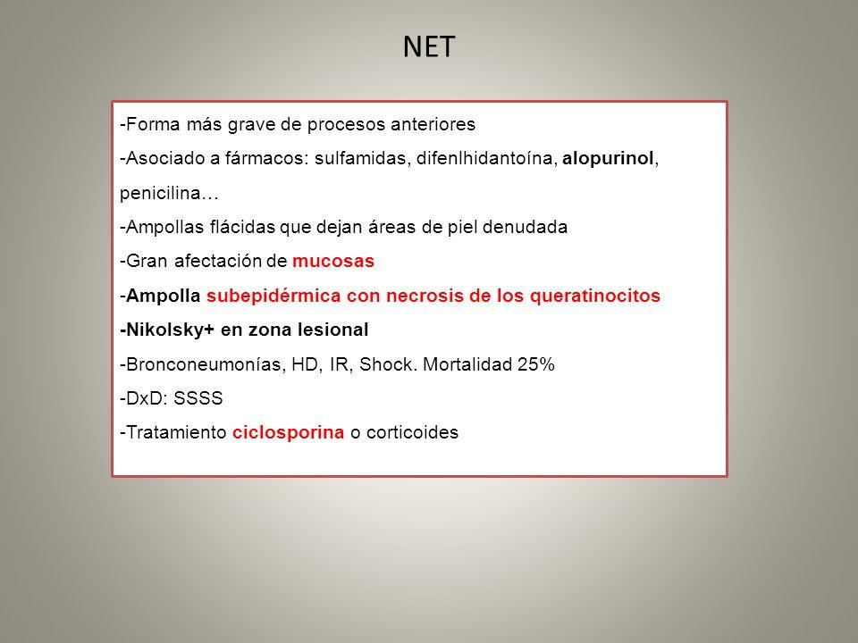 NET -Forma más grave de procesos anteriores