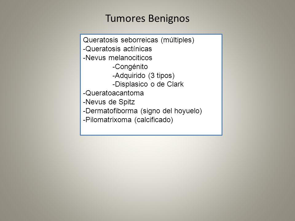 Tumores Benignos Queratosis seborreicas (múltiples)