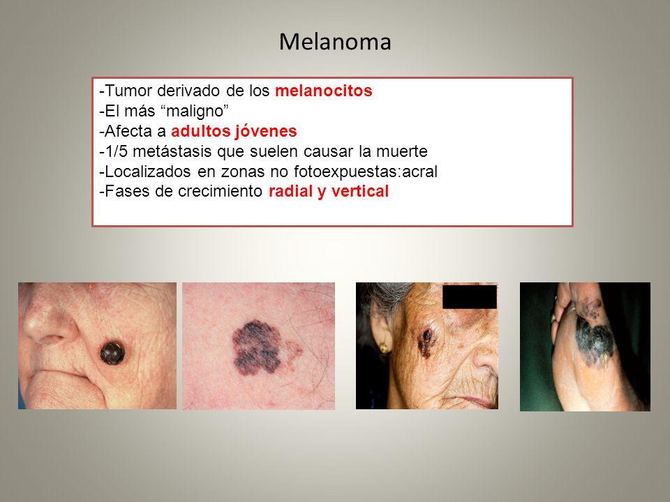 Melanoma -Tumor derivado de los melanocitos -El más maligno