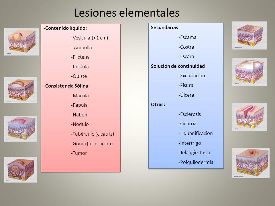 Lesiones elementales -Contenido líquido: Secundarias