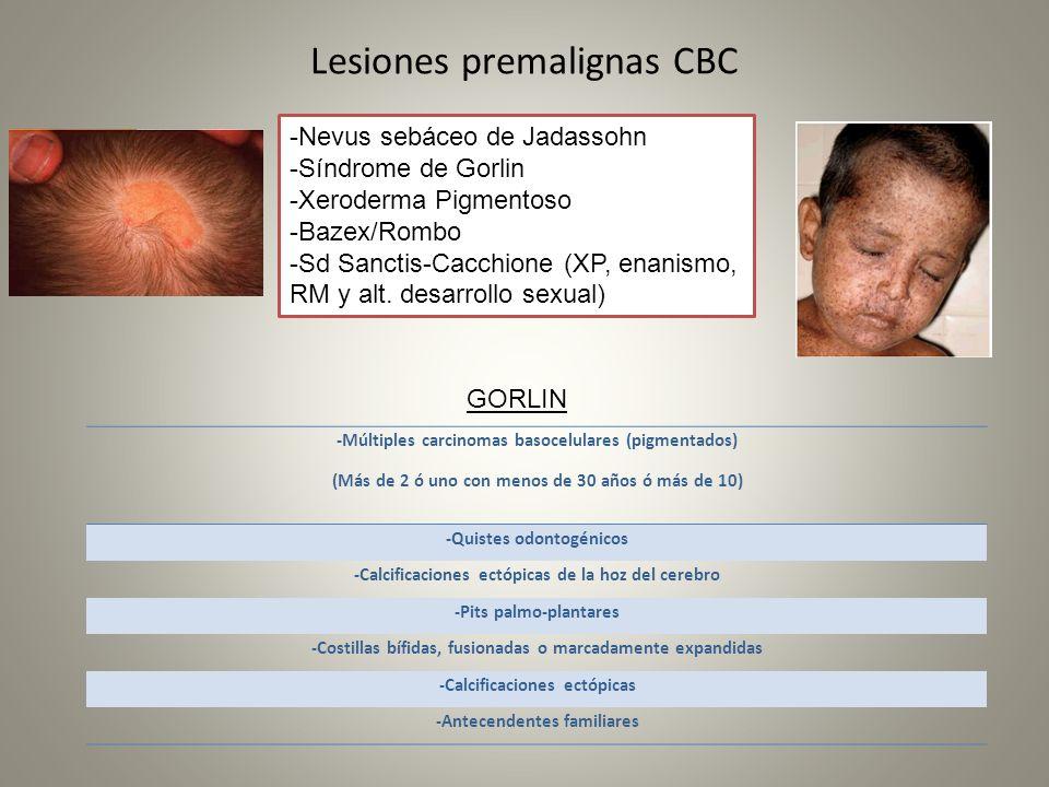 Lesiones premalignas CBC