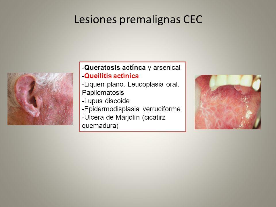 Lesiones premalignas CEC