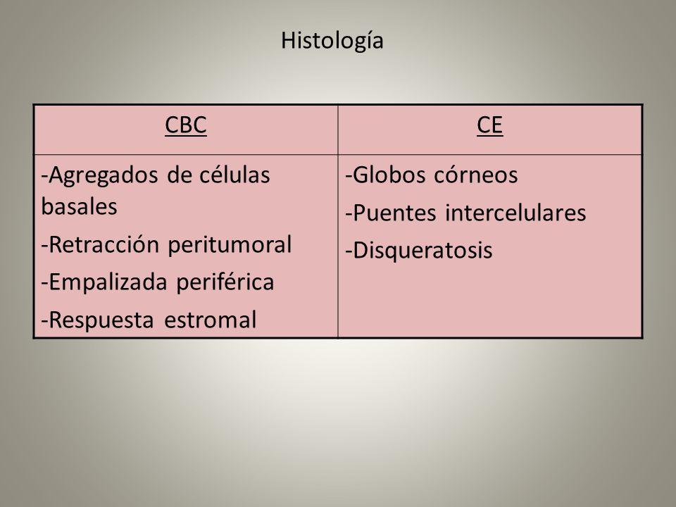 Histología CBC. CE. -Agregados de células basales. -Retracción peritumoral. -Empalizada periférica.