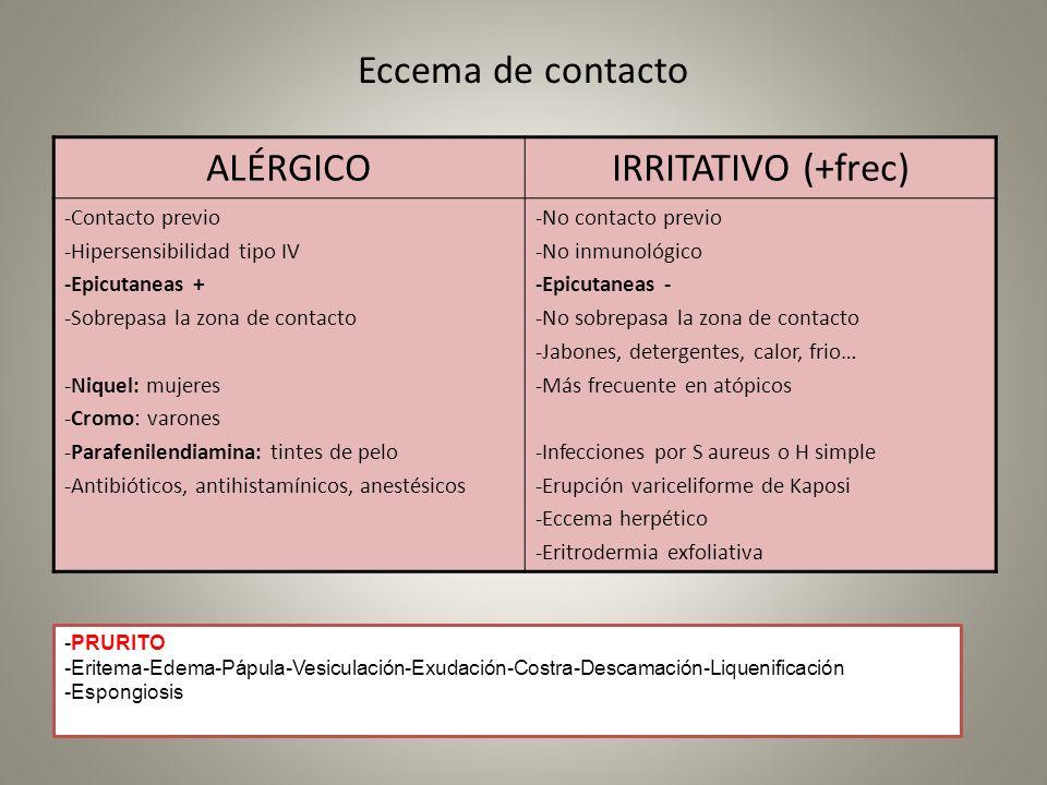 Eccema de contacto ALÉRGICO IRRITATIVO (+frec) -Contacto previo