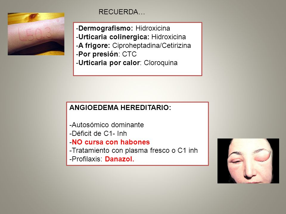 RECUERDA… -Dermografismo: Hidroxicina. -Urticaria colinergica: Hidroxicina. -A frigore: Ciproheptadina/Cetirizina.