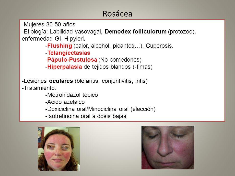 Rosácea -Mujeres 30-50 años