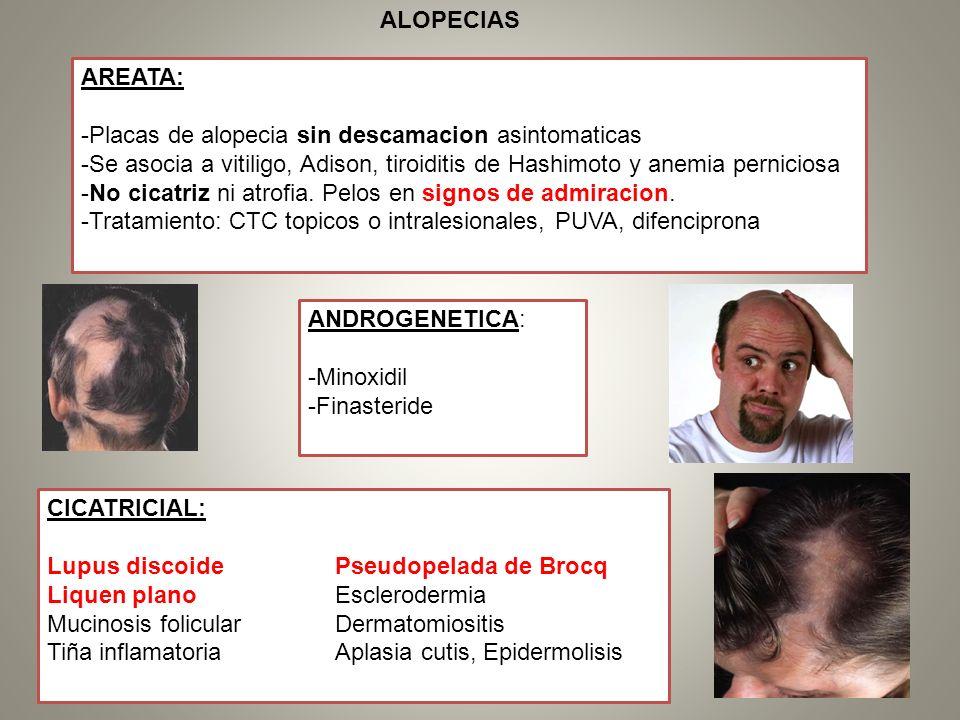 ALOPECIAS AREATA: -Placas de alopecia sin descamacion asintomaticas. -Se asocia a vitiligo, Adison, tiroiditis de Hashimoto y anemia perniciosa.